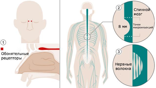Схема хирургических операций (фото University College London).