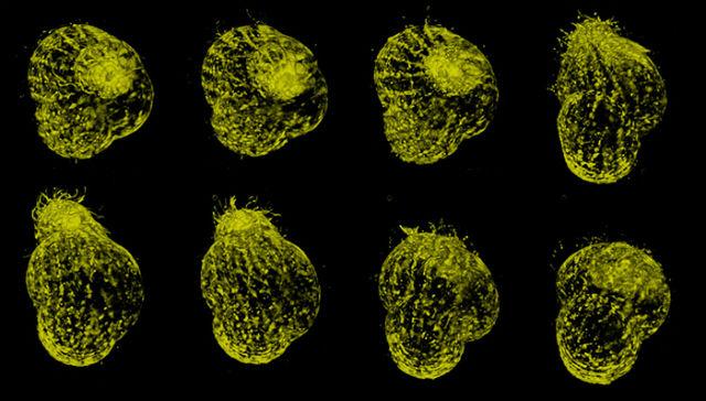 Новая методика микроскопии позволяет делать 1000 кадров в секунду и снимать жизнь микроорганизмов во всех подробностях (фото Howard Hughes Medical Institute).