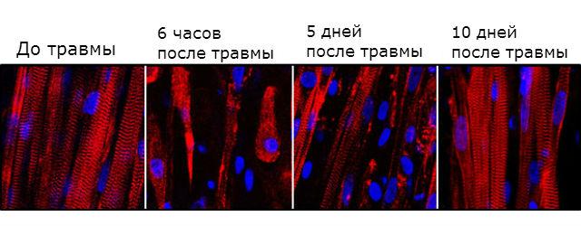 Разрушение и последующее восстановление биоинженерных мышечных волокон (фото Duke University).