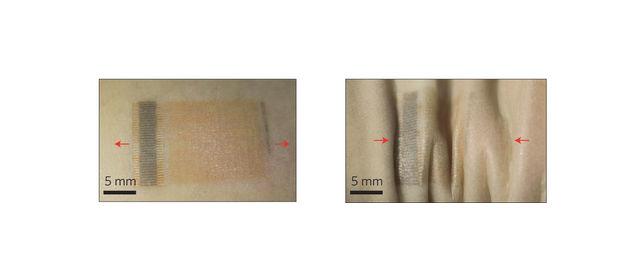 """Устройство работает даже при растяжении и сжатии. Стрелки указывают направление воздействия. """"Пластырь"""" был наклеен на запястье (иллюстрация Nature Nanotechnology)."""