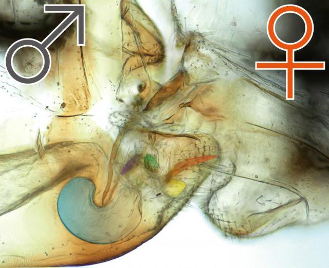 Влагалище под микромкопом фото 18-619