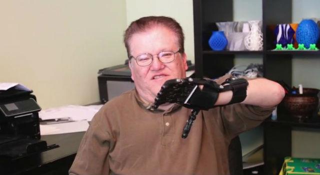 Хосе Дельгадо получил новый бюджетный протез левой руки (фото 3D Universe).