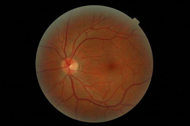Искусственные сетчатки помогут излечивать различные заболевания, а также изучать их природу без тестов на животных (фото Wikimedia Commons).