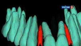 3D-принтер для стоматологов и ювелиров