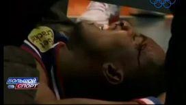 Баскетбольный щит чуть не убил игрока